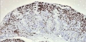 Refractory celiac disease immunohistochemistry (CD3+)